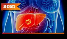 Carcinoma Hepatocelular