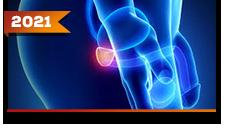 Próstata: Doença Localizada