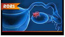 Ovário: Tumores Germinativos