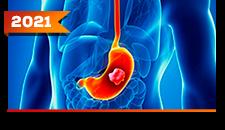 Estômago: Doença Avançada
