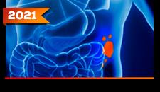Melanoma Cutâneo