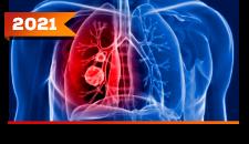 Tumores Neuroendócrinos Pulmonares