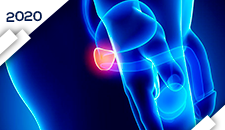 Próstata Doença Localizada