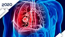 Pulmão Células Não-Pequenas: Doença Localizada e Localmente Avançada