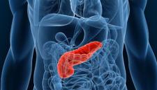 Tumores Neuroendócrinos Bem Diferenciados de Pâncreas