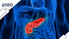 Tumores Neuroendócrinos Pâncreas