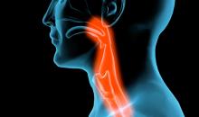 Cabeça e pescoço metastático