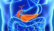 Adenocarcinoma de pâncreas